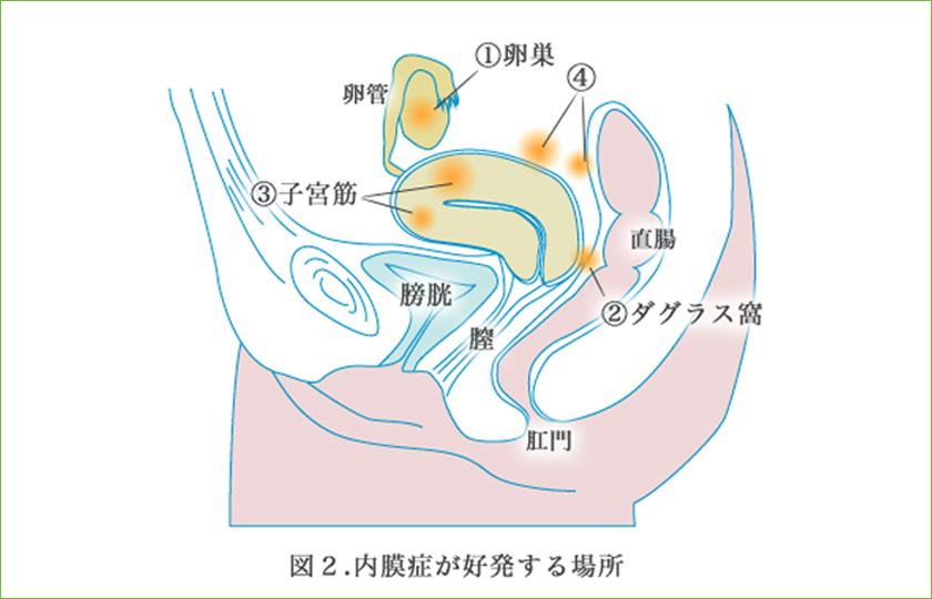 排卵 日 子宮 痛い